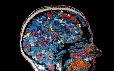 Stress en het brein
